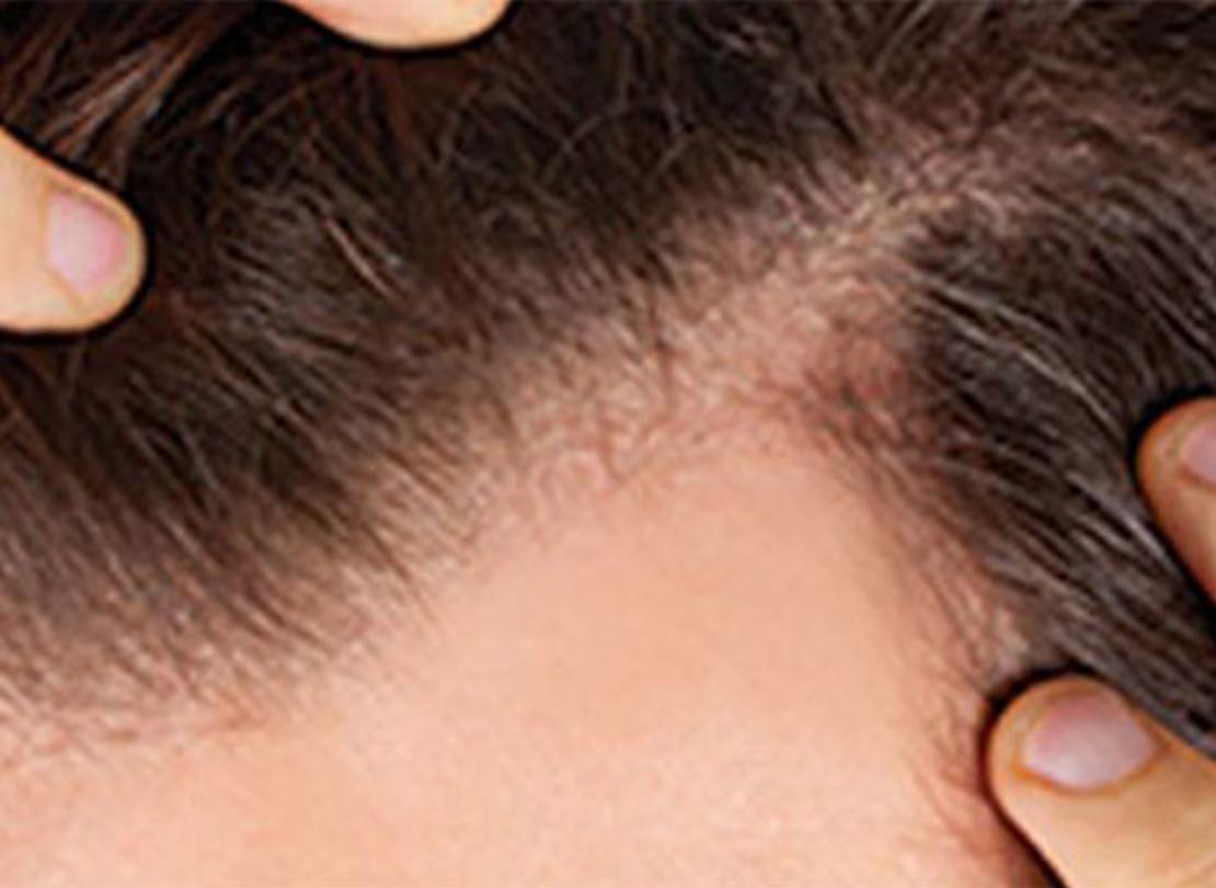 Saç Dökülmesine Ne İyi Gelir: Saç Dökülmesi İçin Doğal Çözüm