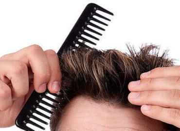 کاشت موی ارگانیک