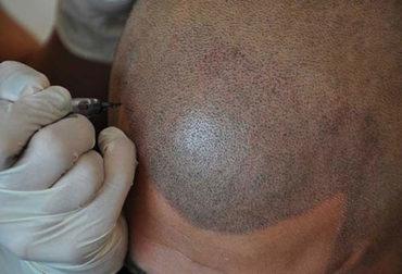 Saç Simülasyonu Gölgelendirme
