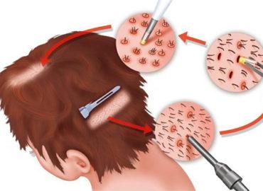 Illimitée de Greffe de Cheveux